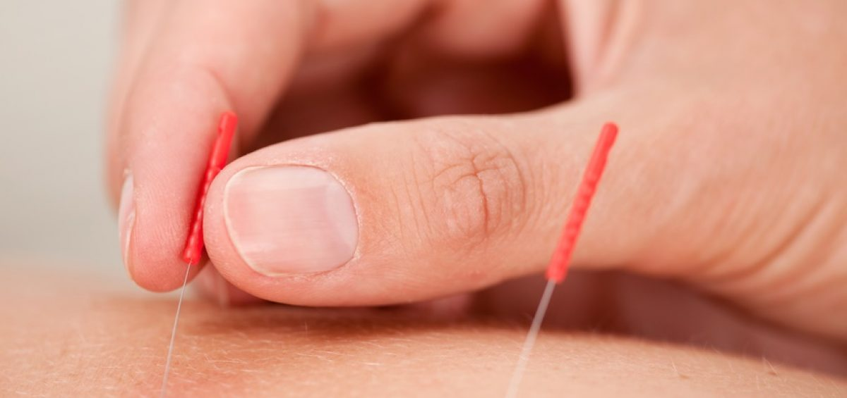 acupuncture Discount for First Time Patients
