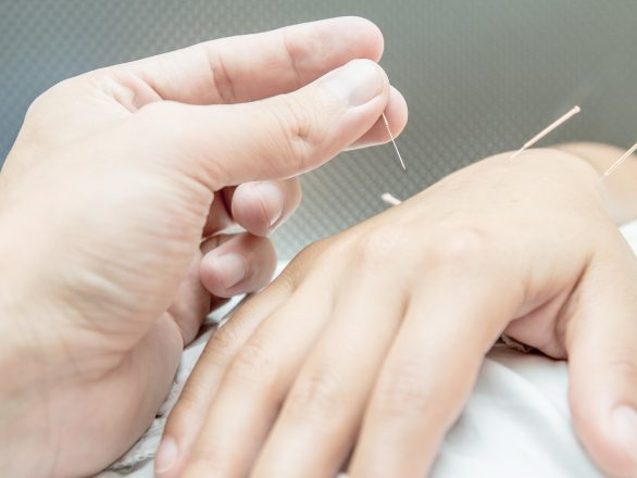 Acupuncture treatment relieves stress